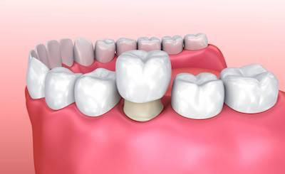 Crowns & Bridges Rockwall TX | Restore Cracked or Missing Teeth