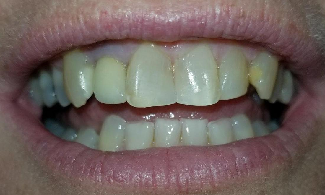 Patient after same day dental treatment in Rockwall, TX
