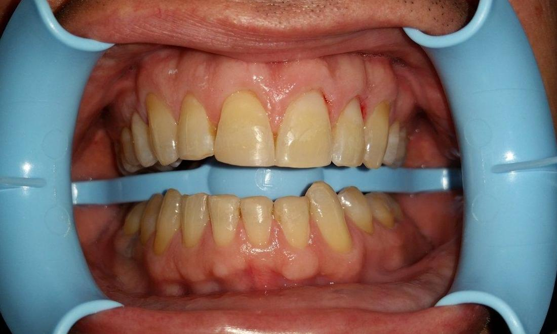 Patient after composite fillings in Rockwall, TX
