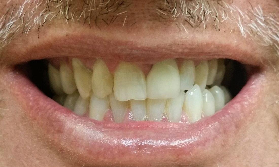 Patient before cosmetic dentistry Rockwall, TX