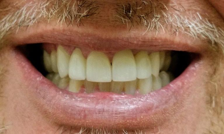 Porcelain-Veneers-Corrected-Multiple-Issues-in-Rockwall-TX-After-Image