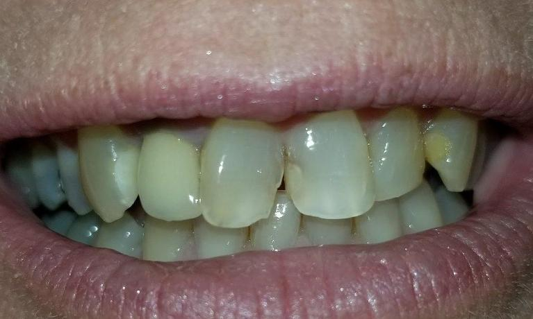 Same-Day-Treatment-in-Rockwall-TX-Before-Image